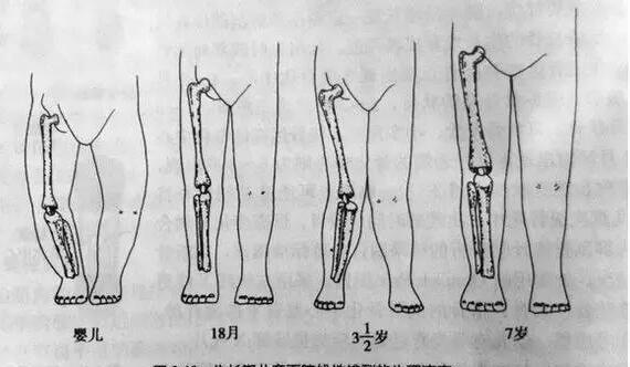 怎样检查宝宝腿型正常