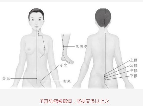 子宫肌瘤,求一求艾灸(43)