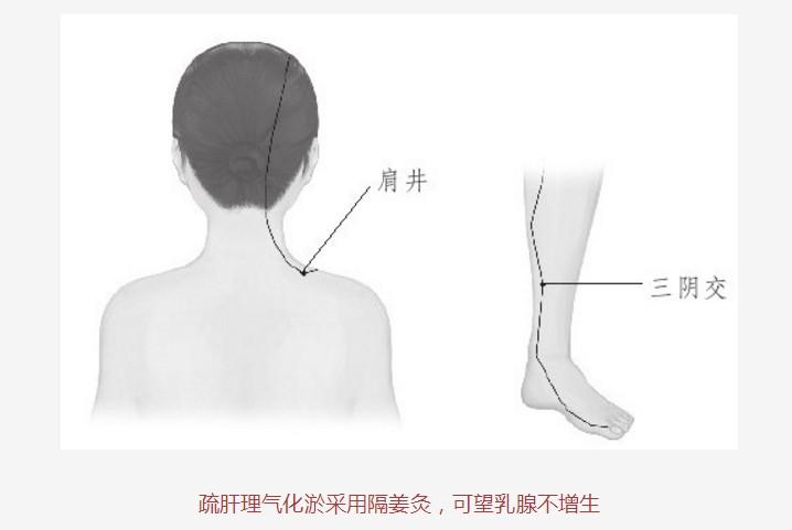 调治乳腺增生,艾灸阿是穴和三阴交(39)