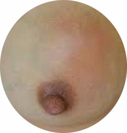 哺乳期患乳腺炎怎么办(63)