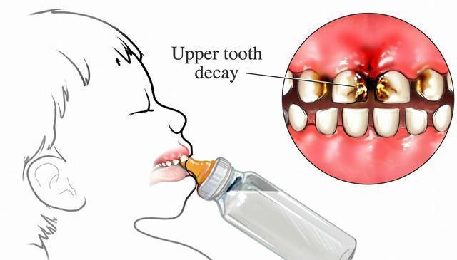 蛀牙疼能不能打瘦脸针