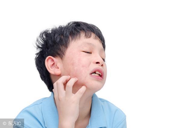 麻疹 寒冷 治療 蕁