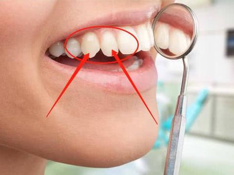 牙龈经常肿胀出血、牙齿松动?小心,你可能需要这一物
