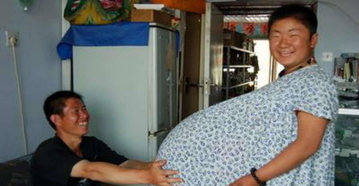 28岁产妇怀八胞胎,12名医生保驾护航,看到性别后医生不淡定