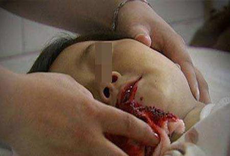 孕妇梦见别人吐血死了