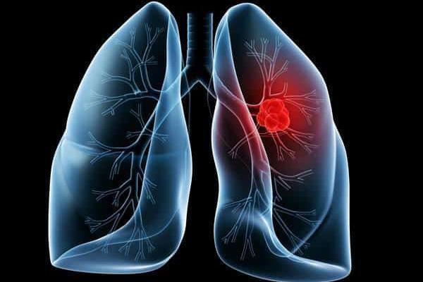 肺癌出现胸腔积液,除了放化疗,还能怎么办?