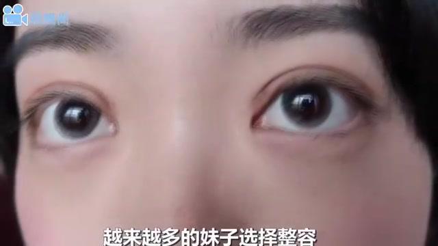 那些割了双眼皮的女生,10年后会变成什么样?镜头记录全过程