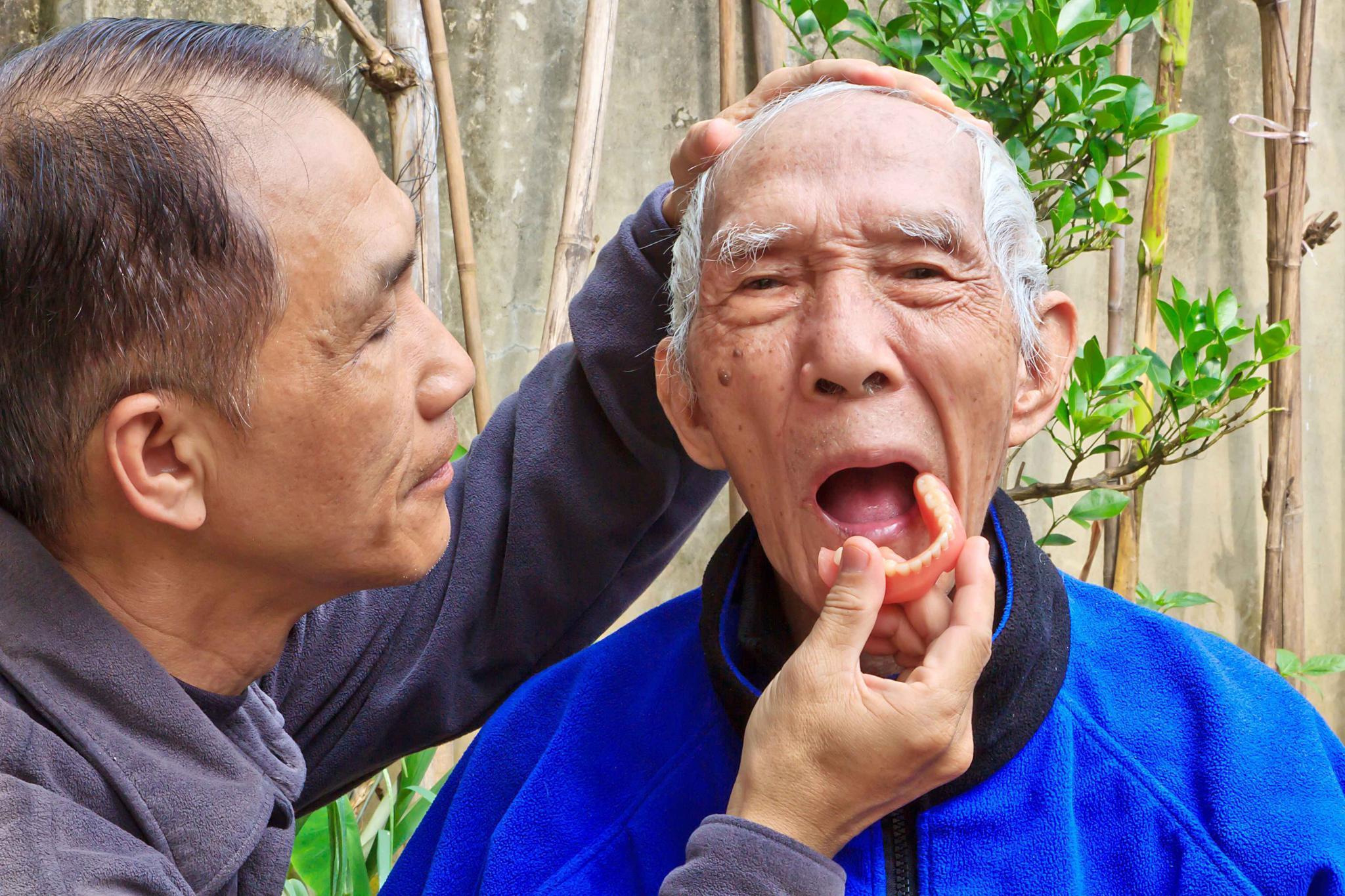 世界阿尔茨海默病日:若老人出现这种现象,离老年痴呆不远了