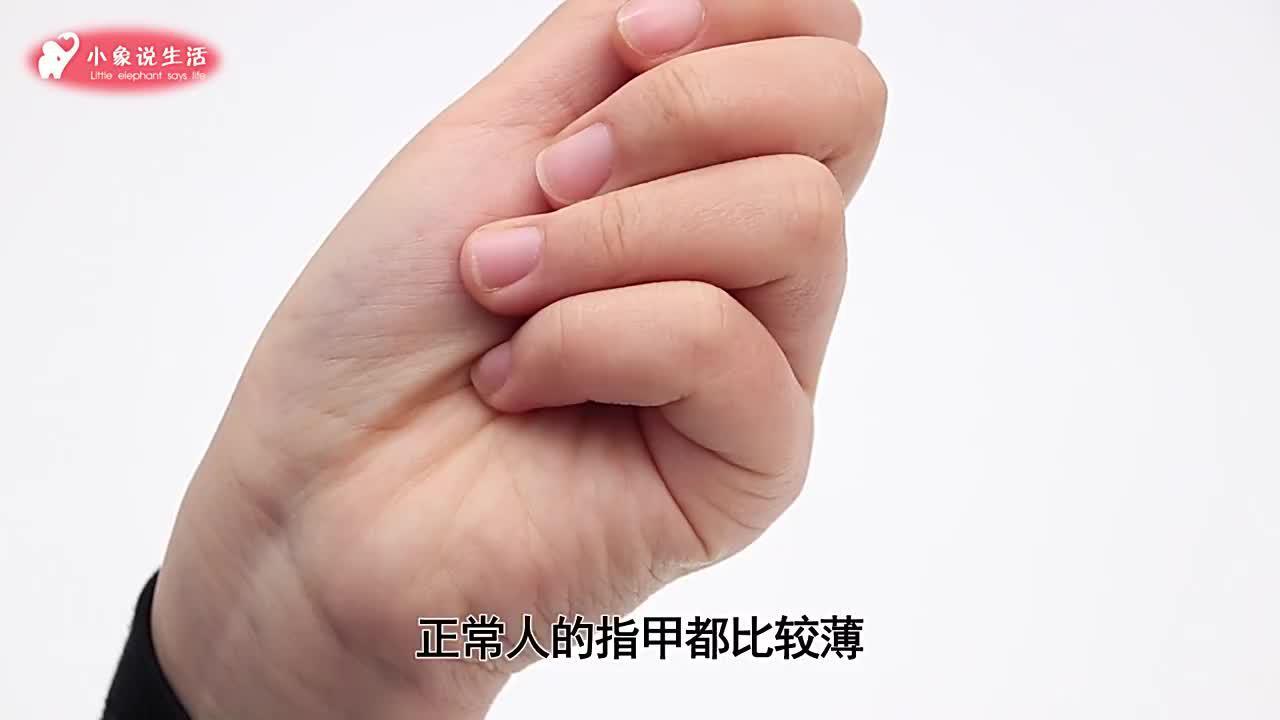 指甲上的月牙越大越健康吗知道的人并不多今天可算是学会了