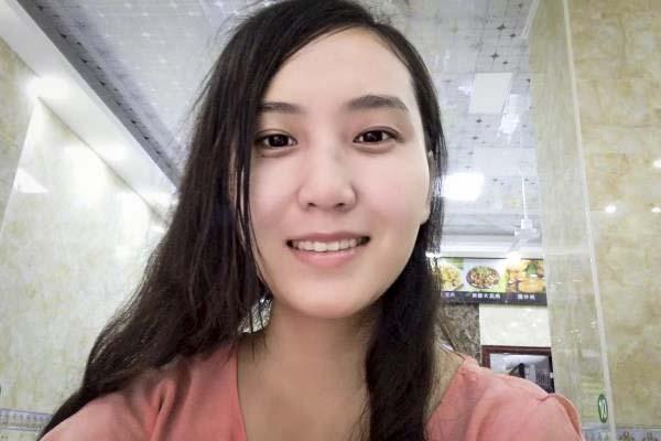 """26岁漂亮女孩意外烧伤只剩""""半张脸"""",生活中一个小错误毁了她"""