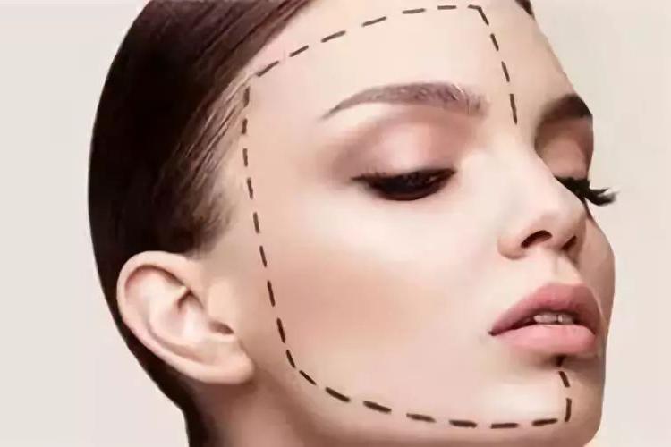 肉毒素联合玻尿酸能改善哪些脸型   科普篇