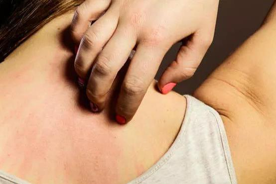 皮肤经常出现过敏反应,或许是甲醛刺激,不除早晚成大患