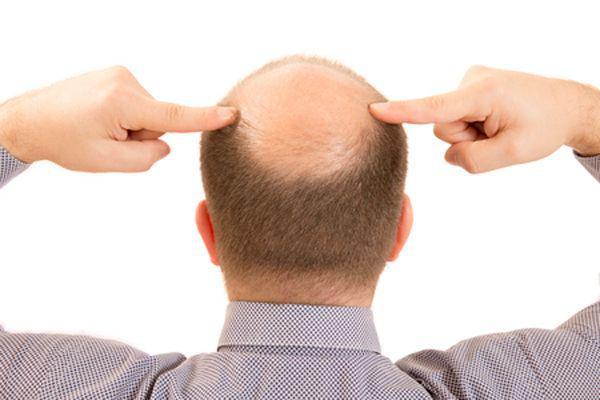 脱发原因及治疗是什么?