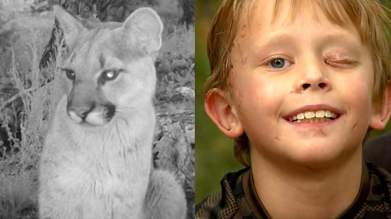 """""""狮""""口脱险!美8岁男童遭美洲狮袭击头部 英勇反击戳狮眼逃生"""