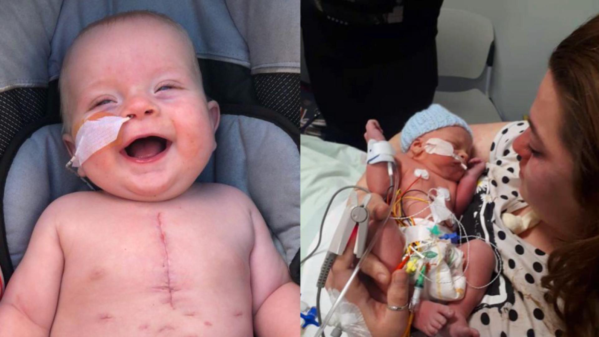奇迹!英国一男婴患有严重的心脏缺陷 移植小牛心脏瓣膜获新生