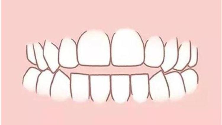 牙齿不齐都包括哪些情况