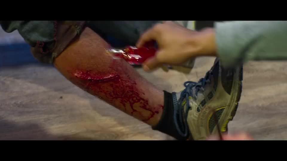 腿上有伤口潘斌龙你拿红花油涂这是想疼死章宇吧
