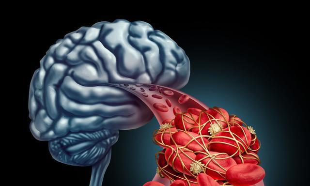 脑梗偏爱的人,身上常有2个特征!医生把清隐患的要点列全,收藏