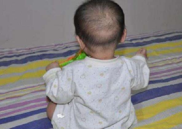 宝宝有眼屎时,这么做容易让孩子患上结膜炎,宝妈要谨记