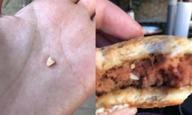女子吃汉堡吃出半颗牙,店员骗她有补偿结果只拿到退款