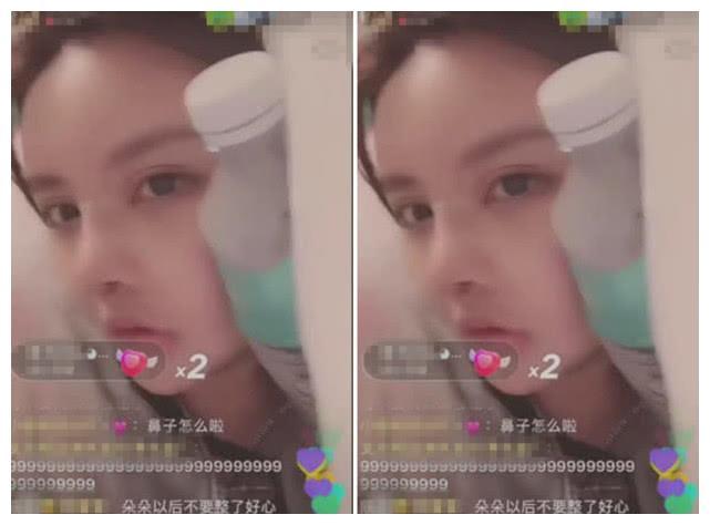 """韩安冉整容后首次""""直播"""",看到她""""新鼻子""""后,20万白花了!"""