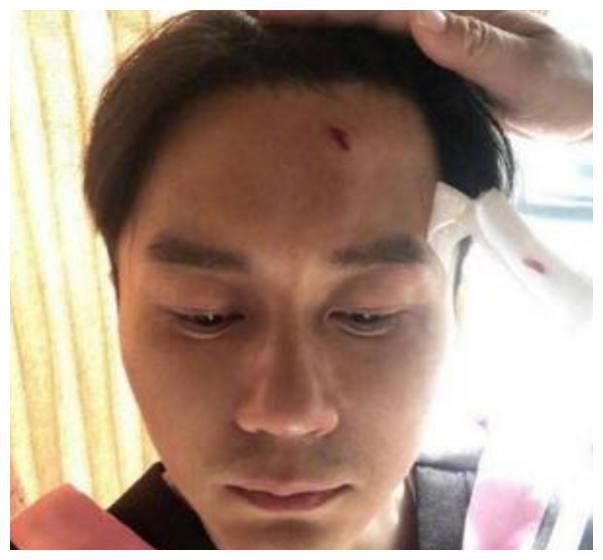 《跑男》李晨被学士帽砸伤,伤口流血,邓超孤军奋战蒙骗所有人