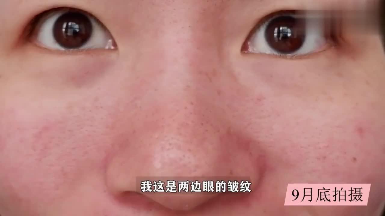 欧莱雅的王牌紫熨斗眼霜,实测60天眼角细纹淡化明显