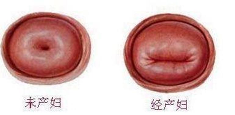 宫颈口的大小和受孕是没有关系的