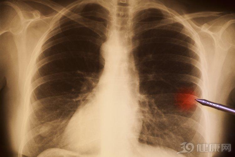 得了肺癌能活多久?医生讲述:我有一个活过10年的病例