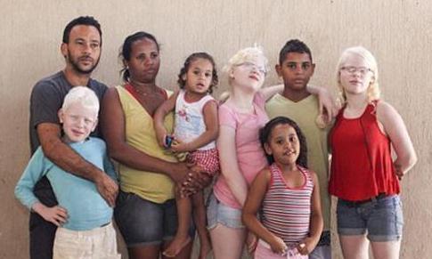 父母全是黑人,生下宝宝变白人!检查后医生一脸懵,全家成一团乱