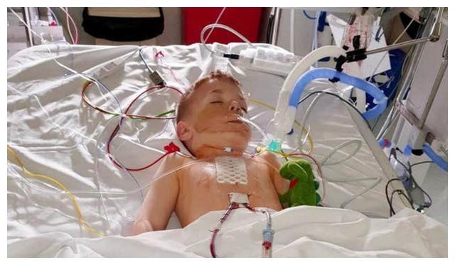 六岁男童做完心脏手术留疤,爸爸为了娃特意在胸口做了一样的长疤