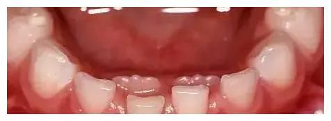 """宝宝换牙期长出""""双排牙"""",竟与家长这样的做法有关"""