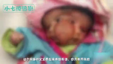 """印度夫妇生下""""双面""""女婴,4只眼睛2个嘴2张脸,一辈子难得一见"""