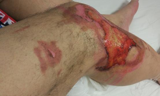 小米MAX突发爆炸事件:事主腿部被炸伤