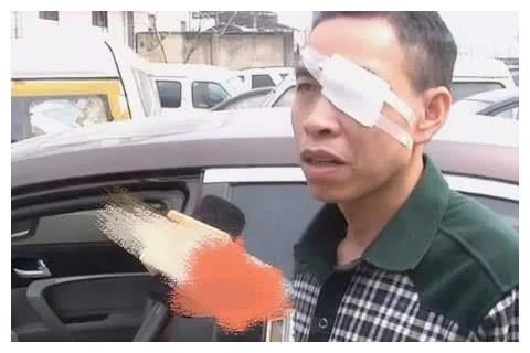 帝豪20迈,安全气囊弹出致车主失明,4S店:不会开车就别开