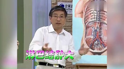健康一身轻淋巴结肿大是好的表现表明淋巴细胞在杀毒