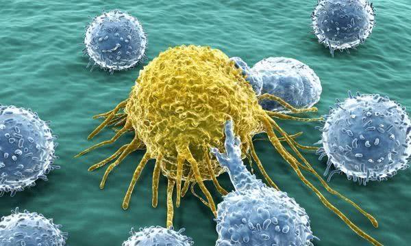 每天约1万人确诊为癌症,建议符合4种特征的人,注意做防癌体检