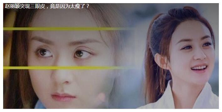 赵丽颖在剧中反复出现三眼皮,颜值下降却让人心疼