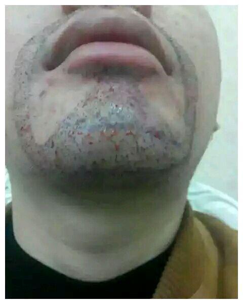 山寨吴秀波相亲被嫌弃,网友直呼辣眼睛,唯一好评就剩胡子了