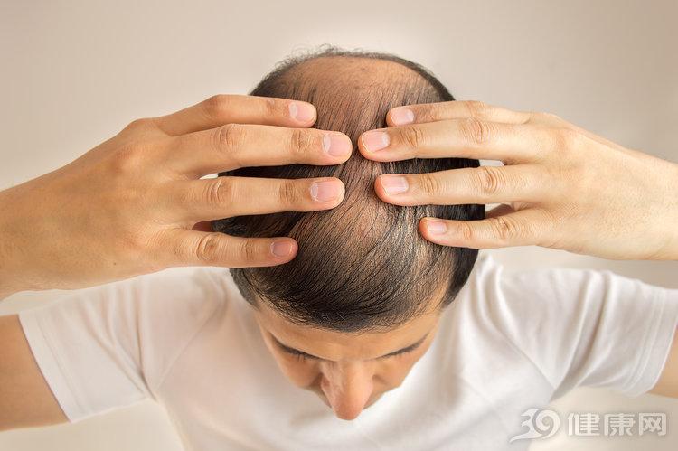 脱发:越早治疗,疗效越好!皮肤科医生:男女用药有这些区别