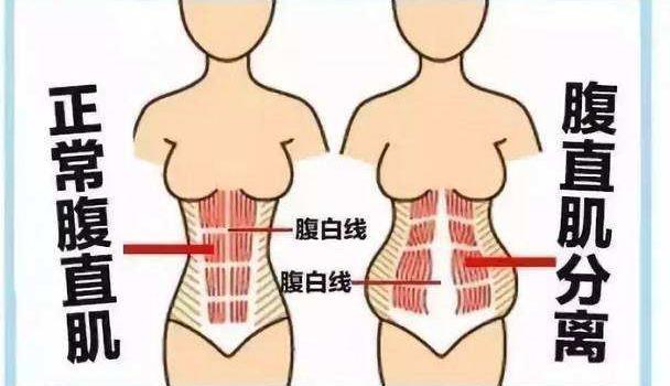 关于产后腹直肌分离,肚子松垮,该如何恢复性训练?