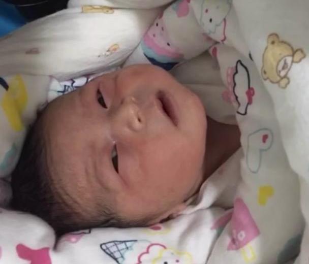为什么有的新生儿出生就没有黄疸?是跟孕妇在怀孕期间的习惯有关