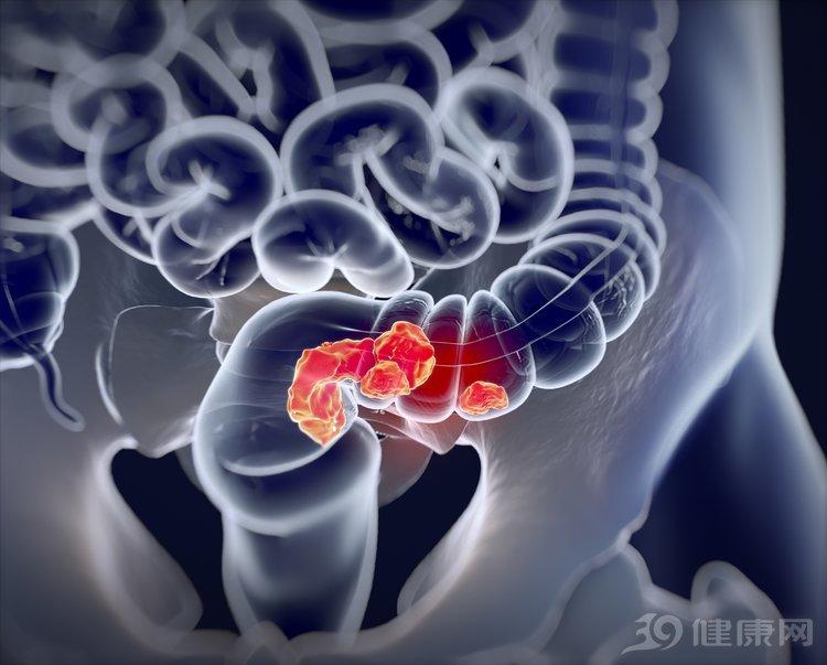 肿瘤科教授:4个症状可能是大肠癌的早期预警,很多人都忽略了!