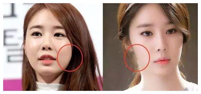 """定期打""""瘦脸针""""的女人,3年过后脸有什么变化?早知道不吃亏"""