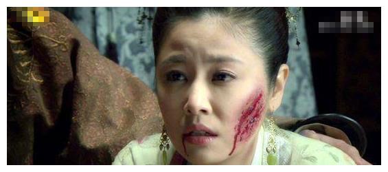 同样是被毁容,赵薇最吓人,而angelababy最尴尬!
