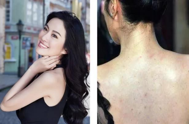 女明星在脸上砸重金,背后的痘痘却惨不忍睹!