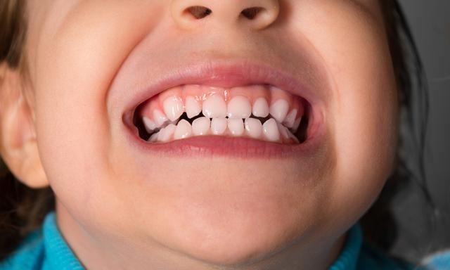 勿让牙齿不齐 影响孩子的身心发育