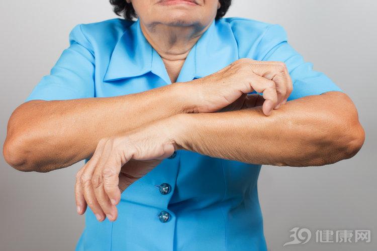 皮肤瘙痒竟查出恶性肿瘤!这三种瘙痒要小心,别等病情加重才后悔