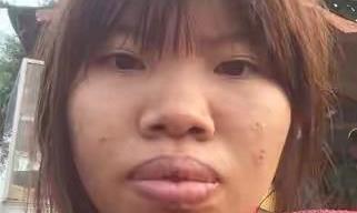 """灰姑娘也能变白雪公主 越南""""凤姐""""整容后直接嫁给富二代"""