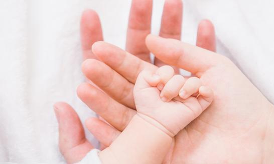 刚出生婴儿发现面部畸形,可以看出孕前检查很重要,要引起注意